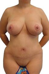 Breast Lift + Reduction