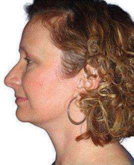 Brow + Forehead Lift