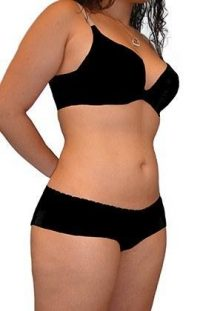 Tummy Tuck + Liposuction