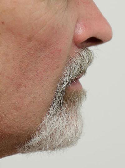 Chin + Jaw Augmentation