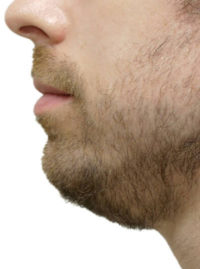 Chin + Jaw Reshaping