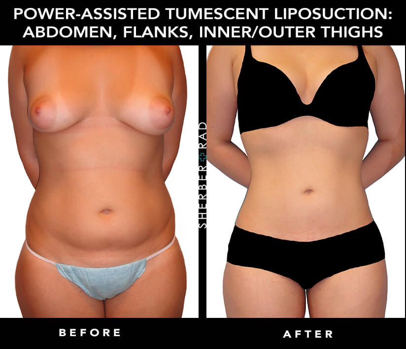 Liposuction in Washington DC