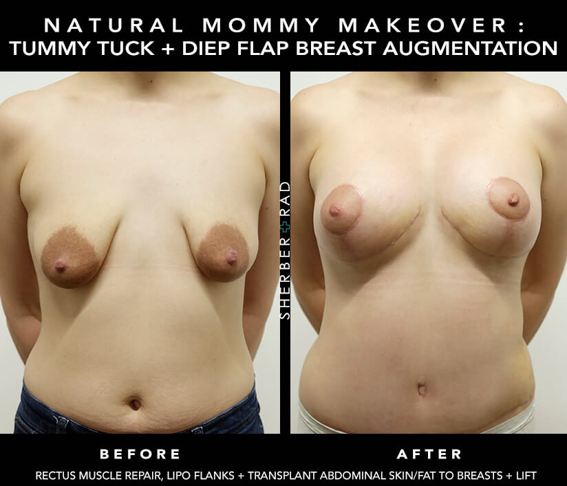 Mommy Makeover Before and After